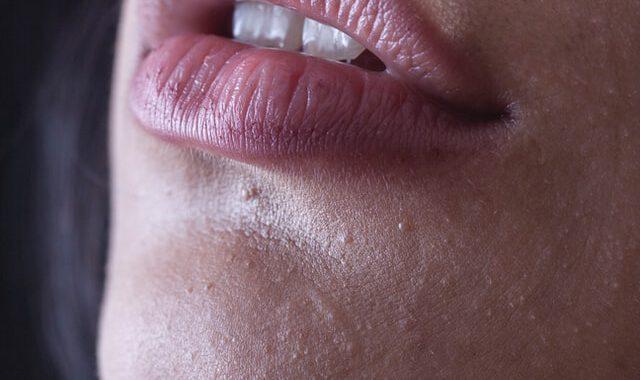 Een egale huid met injectables